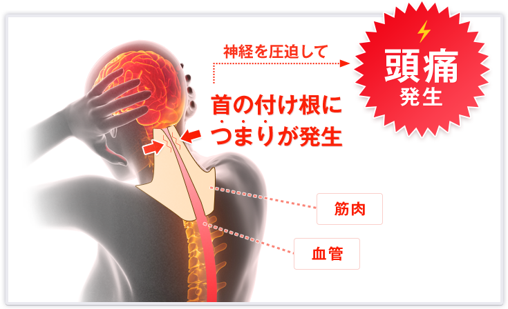 神経を圧迫して 首の付け根につまりが発生 頭痛発生 筋肉 血管